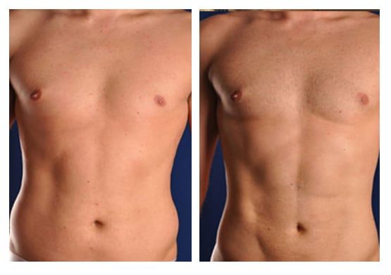 Liposuction And Smartlipo In Irvine  Newport Beach